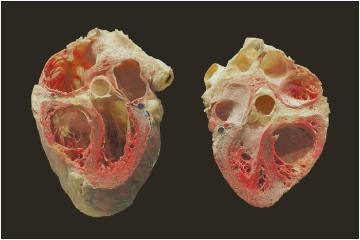 Circulatory - 7th Grade Science - Human Anatomy ...