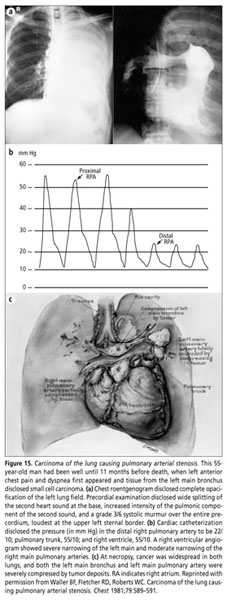 Academic Onefile Document Neoplasms Involving The Heart Their