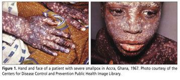 smallpox viruses essay One major difference between the pathogens that cause anthrax and smallpox is that anthrax is a form of bacteria while smallpox is an example of a virus, anthrax is caused by the bacteria bacillus anthracis.