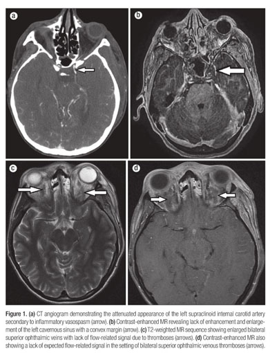 Academic Onefile Document Bilateral Cavernous Sinus And Superior