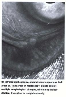 viagra in pulmonary hypertension