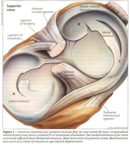 Academic Onefile Document Meniscal Tears When To Treat When To