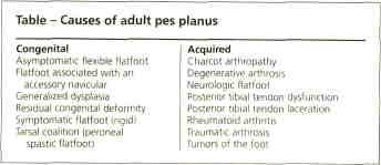 Pes Planus Causes