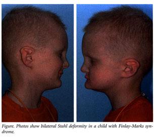 Stahl Ear Deformity — Dallas Pediatric Plastic Surgeon ...