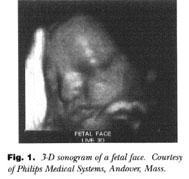 Achondrogenesis Ultrasound