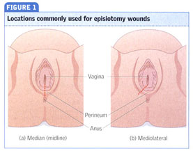 Academic OneFile - Document - Perineal tears and episiotomy
