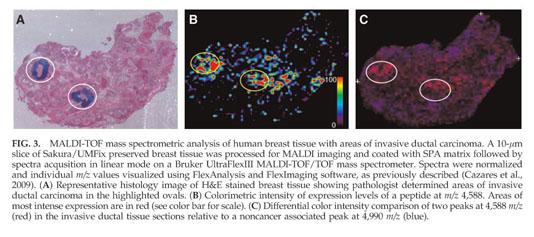 Laronga, C., Becker, S., Watson, P., Gregory, B., Cazares, L., Lynch, H., et al. (2004). SELDI-TOF serum profiling for prognostic and diagnostic ...