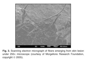 Academic OneFile - Document - The mystery of Morgellons disease