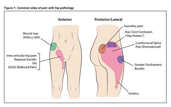 AONE on knee bursa