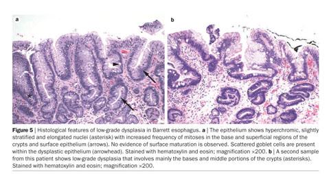 gale academic onefile document barrett esophagus
