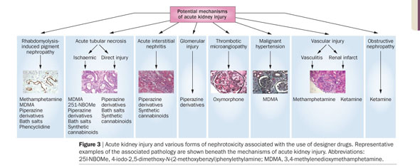 Academic OneFile - Document - Nephrotoxic effects of designer drugs