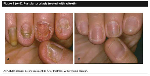 Academic Onefile Document Treatment Of Nail Disorders