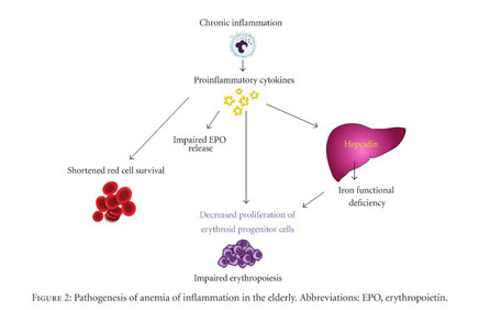 Academic OneFile - Document - Management of anemia of inflammation