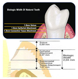 osseo integration affects biological width by altering the position of the micro gap and controlling circumferential bone loss around dental implants