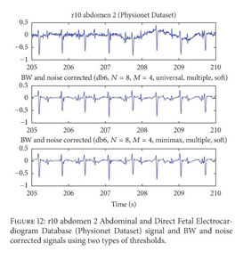 Academic OneFile - Document - Noise suppression in ECG