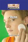 Acne cover