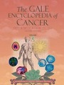 The Gale Encyclopedia of Cancer, ed. 2 cover