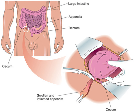 how to tell appendicitis from constipation