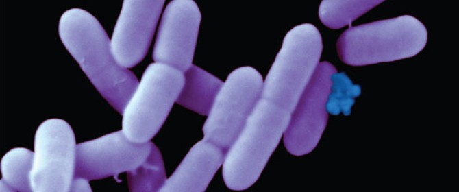 Is Listeria motile? and from which microscope can you view this bacteria.?