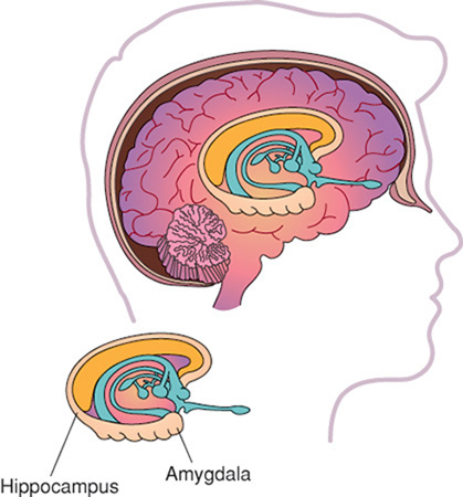 Memory loss may result from bilateral damage to the limbic system of the brain responsible for memory storage, processing, and recall.