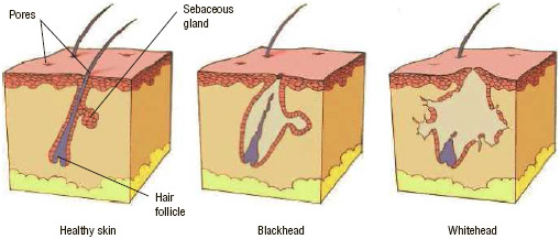 Healthy skin (left) has pores, hair follicles, and sebaceous glands that make an oily substance called sebum. Sebum helps keep skin and hair healthy by carrying away dead skin cells that have been shed by the follicle linings.