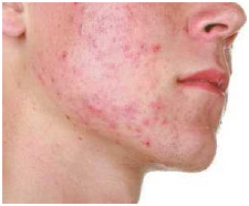 Acne is characterized by blackheads, whiteheads, and pustular nodules.