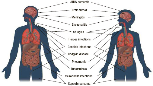 AIDS, and the infections that occur with the disorder, can affect many parts of the body.