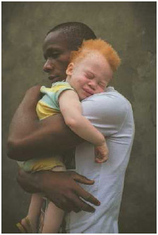 Many people with albinism have skin and eyes much lighter than that of their family members. People with albinism often have vision problems and must take care to protect their skin from sunburn.