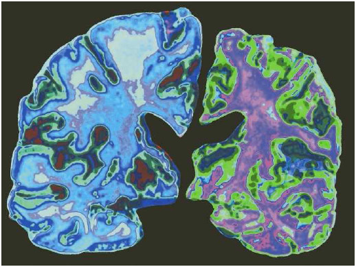 Normal brain on the left and the brain of a person with Alzheimer's disease on the right, which is atrophied and shows a loss of cortex and white matter.