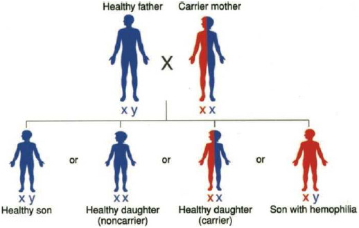 The gene for hemophilia is passed from mothers (XX) to sons (XY) via the X chromosome. A son who inherits a defective X chromosome from his mother does not have a healthy X chromosome to rely on the way daughters (XX) do.