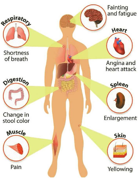 Anemia, Bleeding, and Clotting