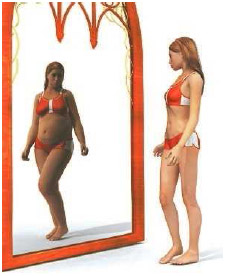 People with anorexia have a distorted perception of what their body actually looks like.