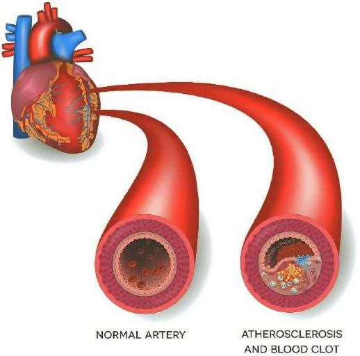 Arteriosclerosis/Atherosclerosis