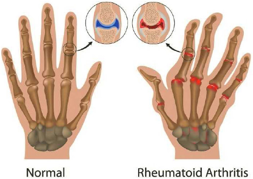 X-ray of normal hand and hand with severe rheumatoid arthritis. Bone deformation is seen in finger and hand joints. Most joints are ragged due to bone erosion, with the thumbs also affected.