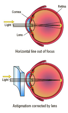 Astigmatism can be treated by the use of cylindrical lenses. The lenses are shaped to counteract the shape of the sections of the cornea that are causing the difficulty.