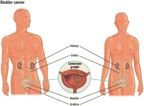 Bladder cancer illustrated in a male and a female.