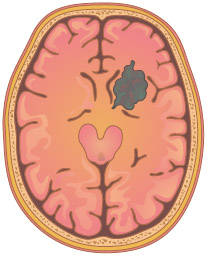 Illustration depicting a tumor (shown in gray) in the right hemisphere of the brain.