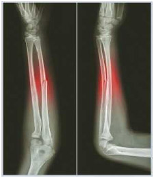 X-ray of a fracture of the forearm bone (ulna), front (left) and side (right) view.