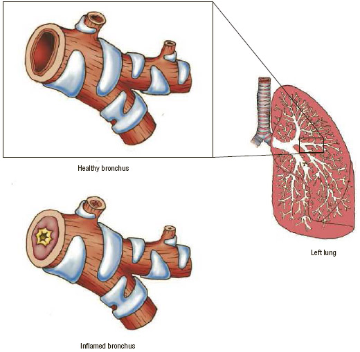 Close-up view of the anatomy of the left lung and of one of its bronchial tubes, which is called a bronchus. Healthy bronchi bring air in and out of the lungs, but in people with irritated and inflamed bronchi,