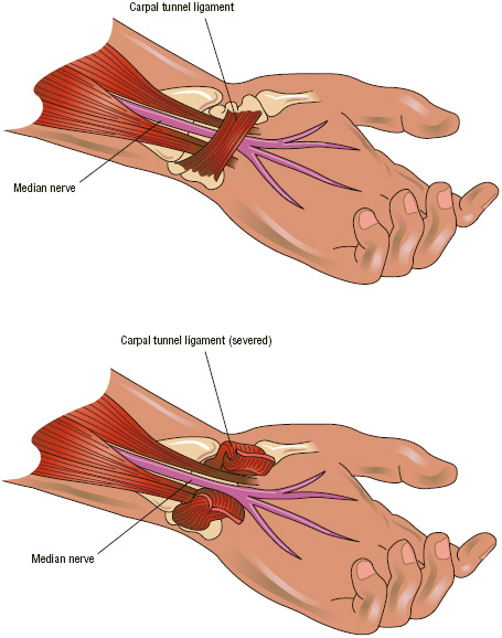 The most severe cases of carpal tunnel syndrome may require surgery to decrease the compression of the median nerve and restore its normal function.