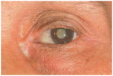 In a normal eye, the lens of an eye is clear. If the lens is cloudy (center of the eye) from a cataract, the image seen will be blurred.