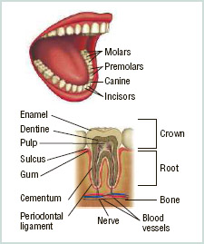 Cavities are most likely to form in the areas where plaque sticks to the teeth. The acid in plaque can eat a hole in a tooth's enamel, allowing bacteria to reach the tooth's pulp.