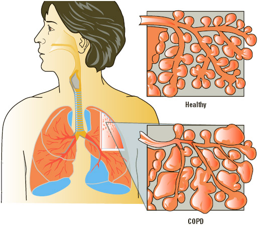 The respiratory system with cross sections of healthy alveoli and alveoli with Chronic Obstructive Pulmonary Disease (COPD).