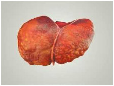 A liver diseased by cirrhosis. A healthy liver is soft and smooth. e
