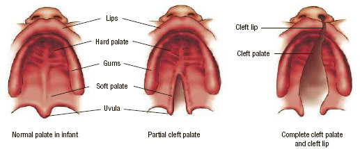 A cleft palate is a gap or split in the roof of the mouth (palate). The palate fuses closed as a normal part of fetal development (left).