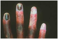 The white, speckled skin on the fingers indicates frostbite injury.