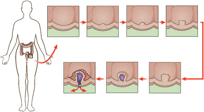 Illustration showing the development of a cancerous tumor within the colon.