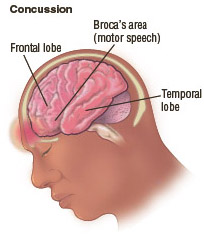Illustration of the head and brain, depicting the areas of the brain most vulnerable in a concussion. The frontal lobe regulates reasoning, planning, parts of speech and movement, emotions, and problemsolving.