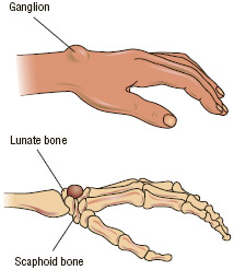 A ganglion is a non-cancerous cyst filled with a thick, jelly-like fluid. Ganglions can develop on or beneath the surface of the skin, most likely on the hand or wrist, although runners and skiers often develop them on the foot.