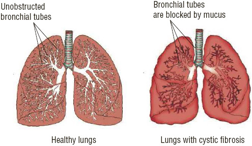 Cystic fibrosis is a chronic disease in which the glands produce excessively sticky mucus that can clog the bronchial tubes in the lungs, making it difficult to breathe.